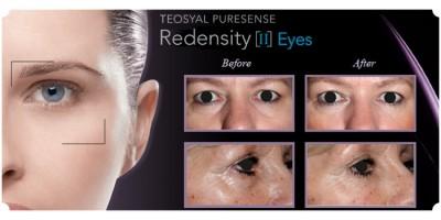 Cách xóa thâm quầng mắt hiệu quả do Chuyên gia da liễu chỉ định